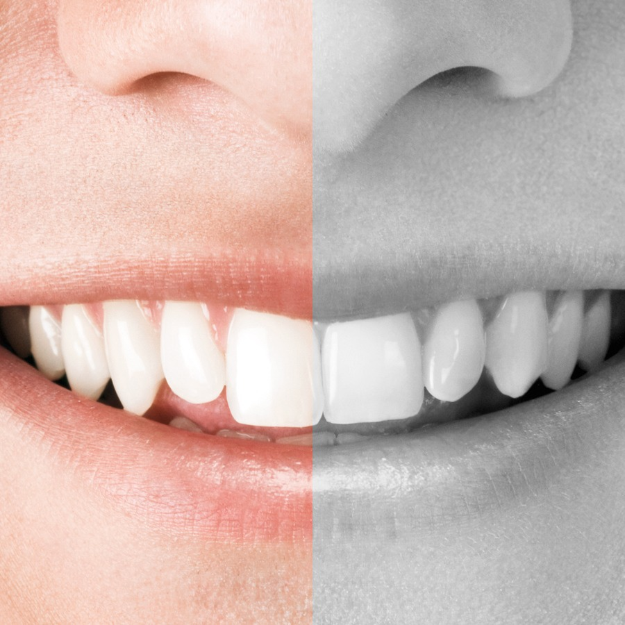 Beim Zahnersatz sparen aber um welchen Preis