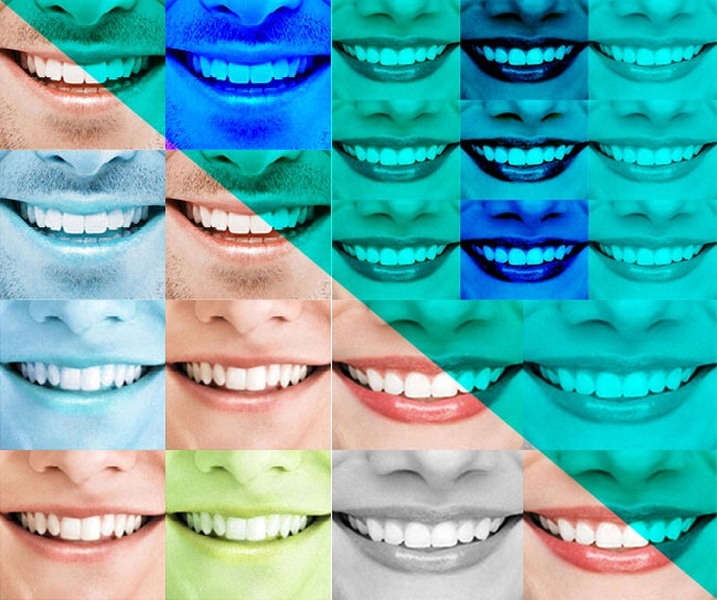 Zahnersatz und Zahnimplantate als unvermutete Lösung